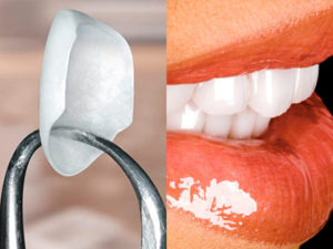 Институт здоровья зубов